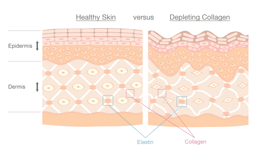 Healthy Skin vs Depleting Collagen